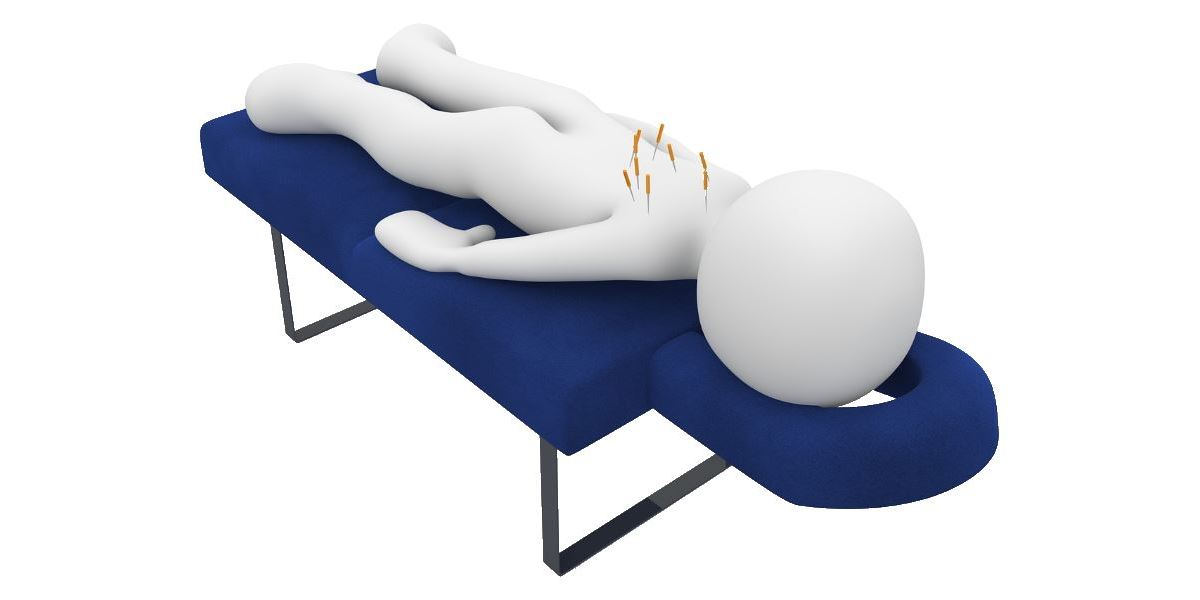 rehabilitation - acupuncture