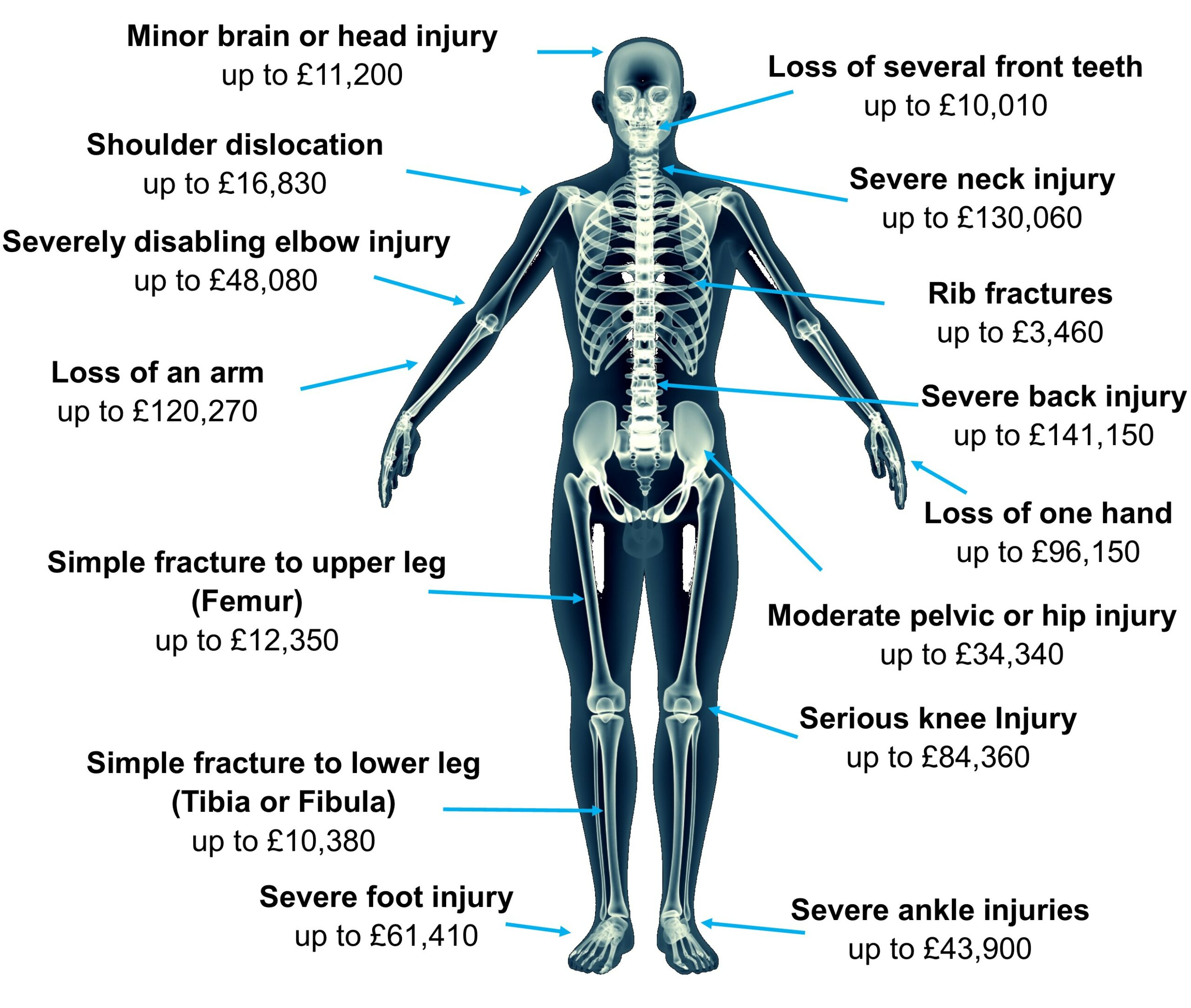 Skeleton Image for Personal Injury Article Relief from holiday Hell
